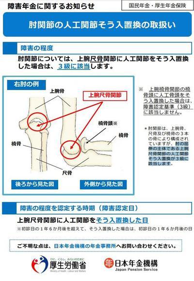 肘関節(橈骨)人工骨頭が3級にならないことを考える。